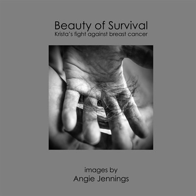 Beauty of Survival 2nd Edition