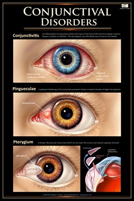 CONJUNCTIVAL DISORDERS Eye Wall Chart #704