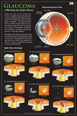 GLAUCOMA - AFFECTING THE OPTIC NERVE Eye Wall Chart #301