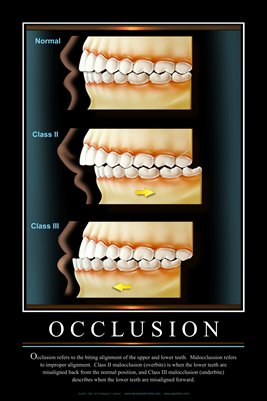 """OCCLUSION"" - (black) Dental Wall Chart DWC241"