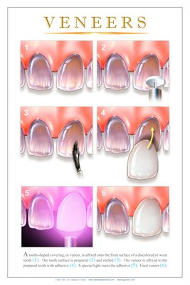 """VENEERS"" - (white) Dental Wall Chart DWC172"