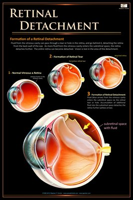 RETINAL DETACHMENT Eye Wall Chart #505