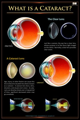 WHAT IS A CATARACT? Eye Wall Chart #409