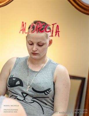 Michelle's Alopecia - A Raw Portrayl | FempoWer