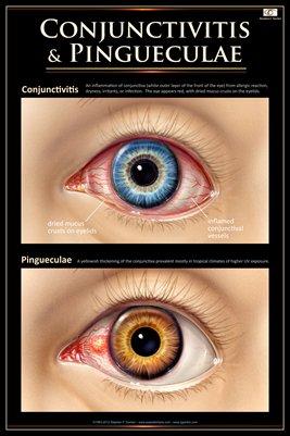 CONJUNCTIVITIS & PINGUECULAE Eye Wall Chart #703