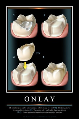 """ONLAY"" - (black) Dental Wall Chart DWC803"