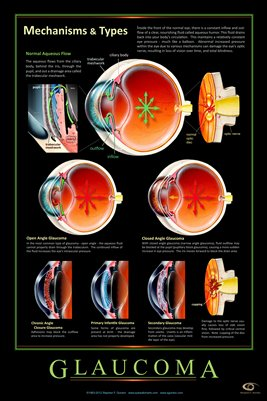 GLAUCOMA - MECHANISMS & TYPES Eye Wall Chart v.4 #307A