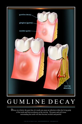 """GUMLINE DECAY"" - (black) Dental Wall Chart DWC403"