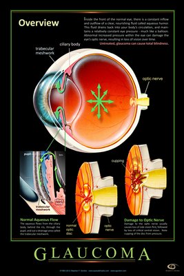 GLAUCOMA - OVERVIEW Eye Wall Chart v.4 #311A