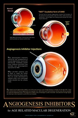 ANGIOGENESIS INHIBITORS FOR AMD Eye Wall Chart #514A