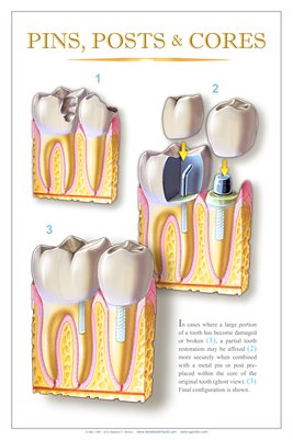"""PINS, POSTS & CORES"" - (white) Dental Wall Chart DWC152"