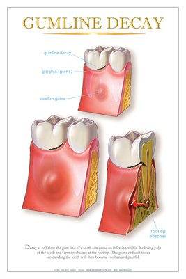 """GUMLINE DECAY"" - (white) Dental Wall Chart DWC404"