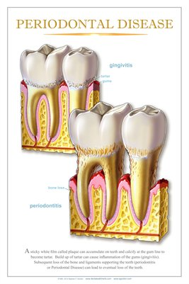 """PERIODONTAL DISEASE"" #3 - (white) Dental Wall Chart DWC606"