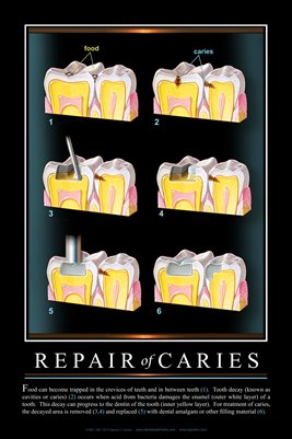"""REPAIR OF CARIES"" #3 - (black) Dental Wall Chart DWC505"