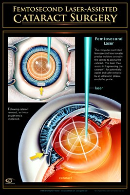 FEMTOSECOND LASER ASSISTED CATARACT SURGERY Eye Wall Chart #410B