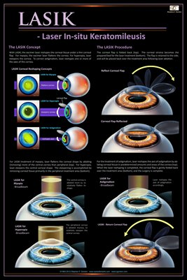 LASIK CONCEPT/PROCEDURE Eye Wall Chart #604