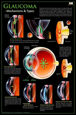 GLAUCOMA - MECHANISMS & TYPES Eye Wall Chart v.1 #306