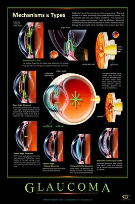 GLAUCOMA - MECHANISMS & TYPES Eye Wall Chart v.3 #306A