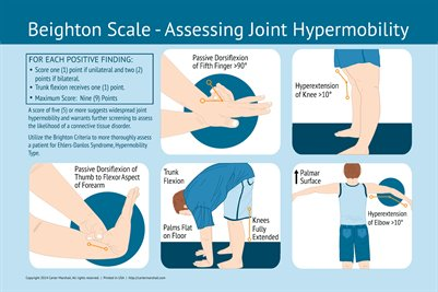 Beighton Scale - Assessing Joint Hypermobility | Healthcare Education Poster