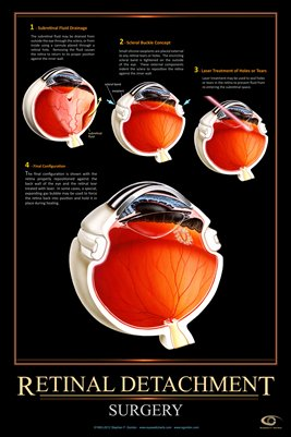 RETINAL DETACHMENT SURGERY Eye Wall Chart #512A