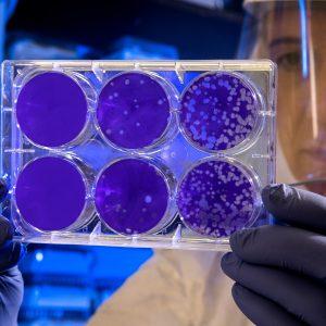 scientist in lab holding slides