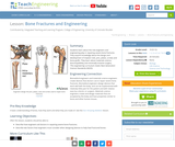 Bone Fractures and Engineering