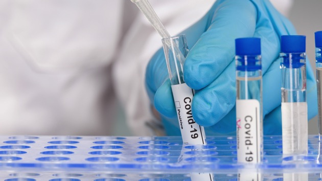 NY hospital launches COVID-19 saliva testing for those seeking to attend large events, fly internationally