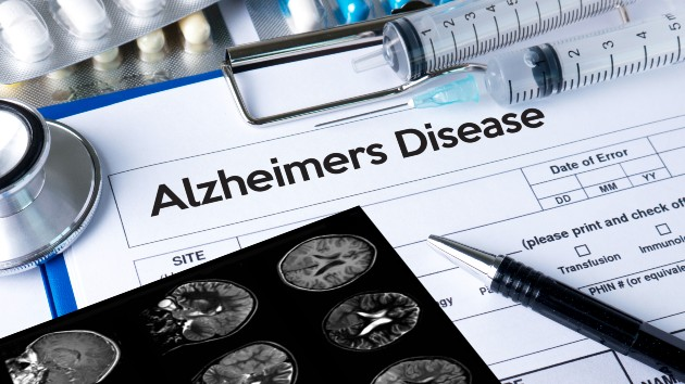 Doctors unsure on recommending new Alzheimer's treatment
