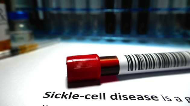 Those suffering from sickle cell disease may finally be getting some relief as experts work on cure