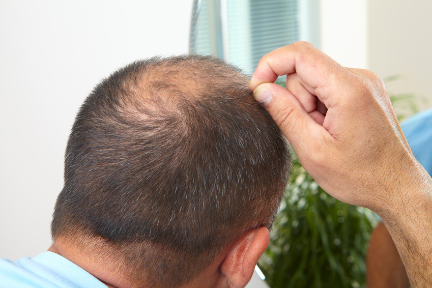 Scalp micropigmentation in los angeles