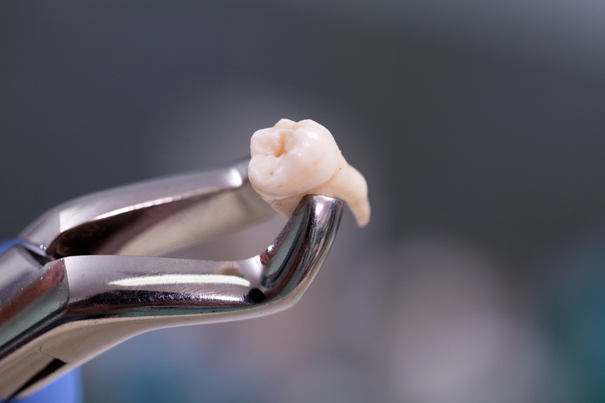 Alternative root canal