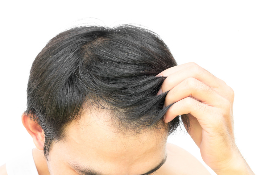 Hair loss los angeles