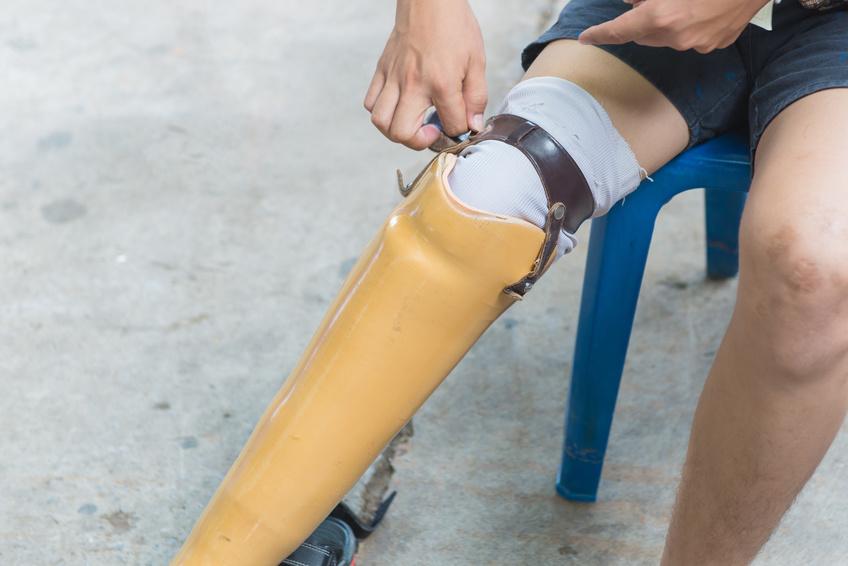 Custom prosthetic leg