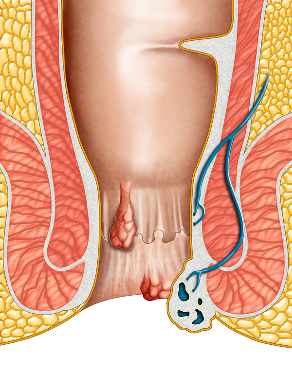 Treatment of hemorrhoids