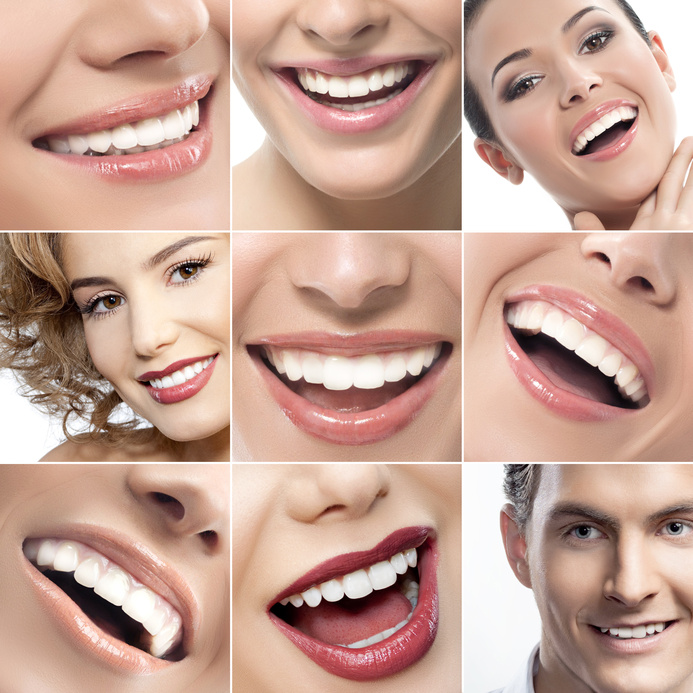 Teeth whitening price