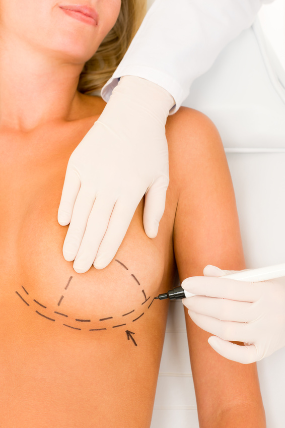 Breast augmentation recovery time