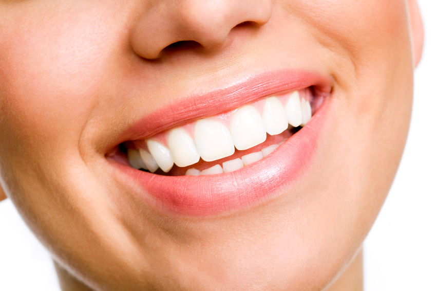 Best teeth bleaching
