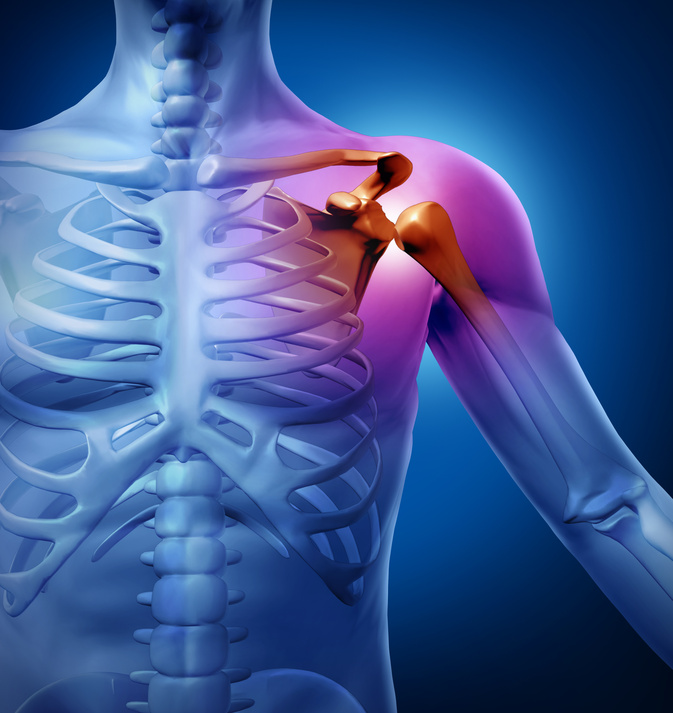 orthopedic shoulder surgery