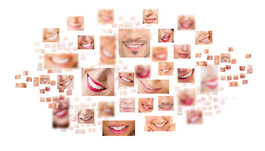 South pasadena cosmetic dental implant