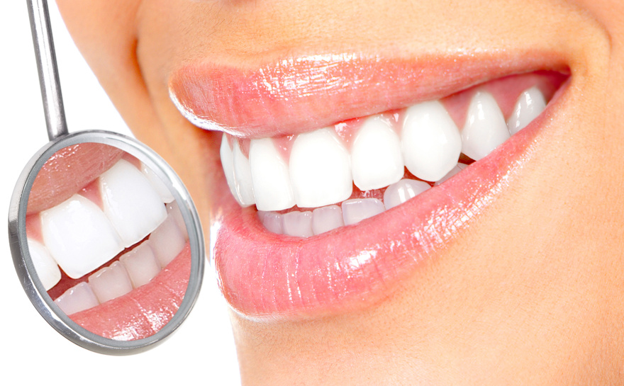 Laser teeth whitening cost