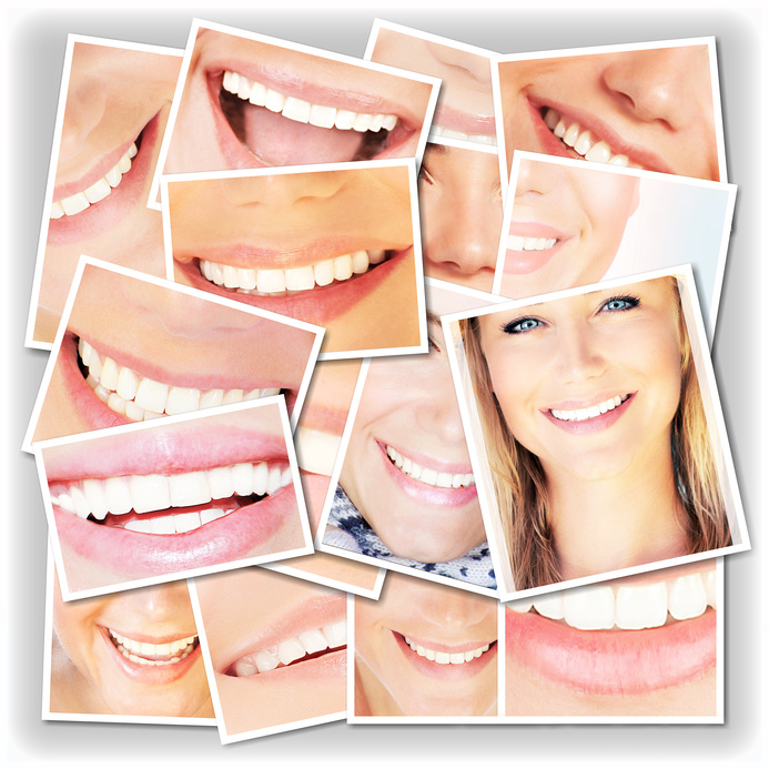 Cosmetic dental work