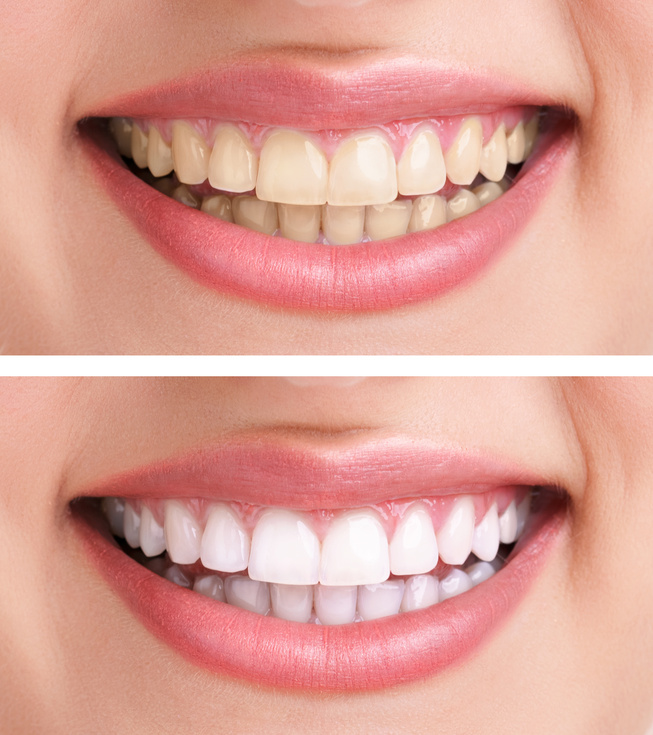 Eau claire teeth whitening methods