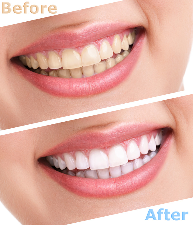 Teeth whitening panama city fl