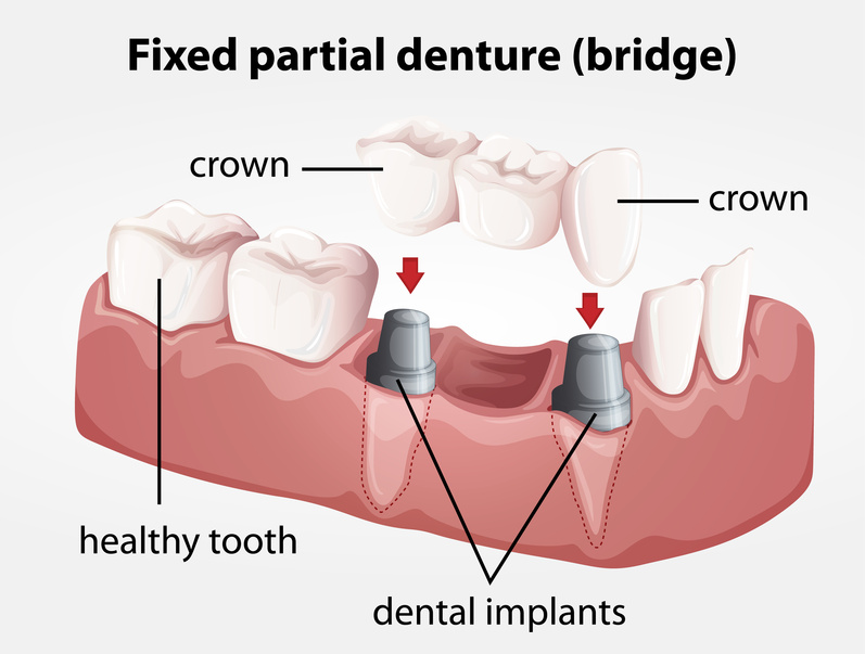 Dentists in houston texas