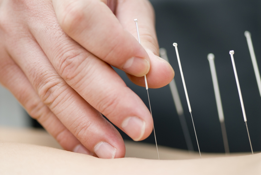 Acupuncture effects on pain
