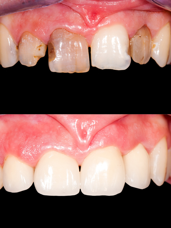 Porcelain veneers plantation
