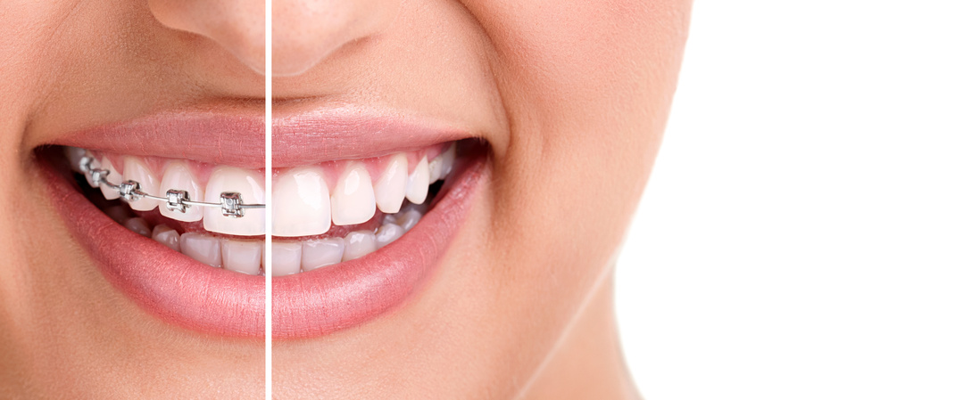 The cost of invisalign