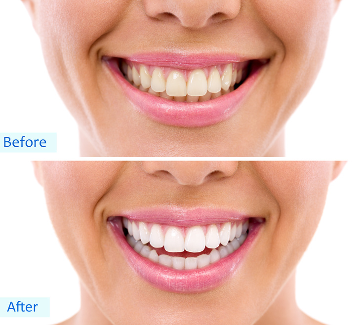 Dental implants in buffalo ny