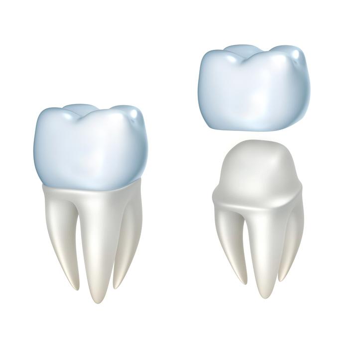 Gum disease treatment sioux falls sd