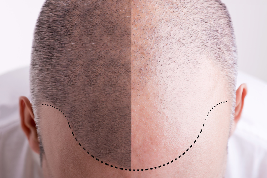 Scalp micropigmentation los angeles